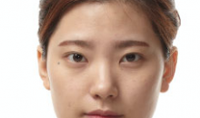 Plastic Surgery In Korea - Buccal Fat Removal Surgery