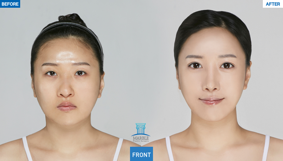 Plastic Surgery In Korea - Double Eyelid Surgery - Korean plastic