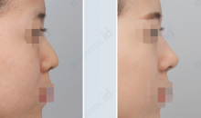 Plastic Surgery In Korea - Rhinoplasty Surgery: Barbie Line Rhinoplasty