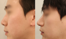 Plastic Surgery In Korea - Rhinoplasty Surgery: Misko