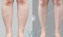 Plastic Surgery In Korea - Body Contouring Surgery: Calf Reduction