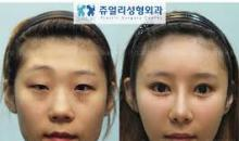 Best cosmetic surgery result