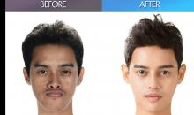 Best men's plastic surgery