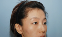 Plastic Surgery In Korea - Double Jaw Surgery
