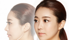 Plastic Surgery In Korea - Facial Contouring Surgery