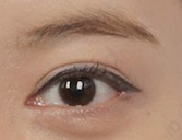 Plastic Surgery In Korea - Revision Of Double Eyelid Surgery