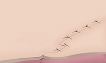 Plastic Surgery In Korea - Scar Removal Surgery