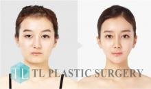 Facial contouring surgery before and after