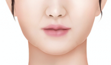 Plastic Surgery In Korea - Buccal Fat Pad Removal Surgery