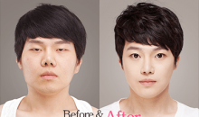 Before and after nose surgery