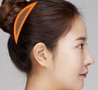 Plastic Surgery In Korea - Head Augmentation Surgery