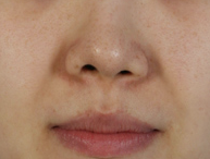 Plastic Surgery In Korea - Rhinoplasty Revision Surgery