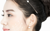 Plastic Surgery In Korea - Types Of Thread Lift Surgery