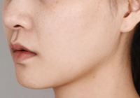 Plastic Surgery In Korea - Facial Contouring Revision Surgery