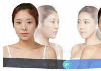 Korean plastic surgery: Cheekbone reduction