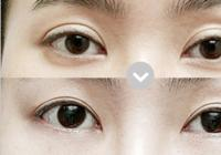 Korean plastic surgery: Eyelid revision plastic surgery