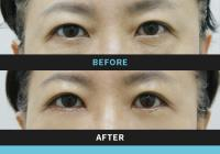 Korean plastic surgery: Lower blepharoplasty