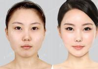 Korean plastic surgery: Fat graft