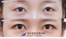 Korean plastic surgery: Canthoplasty and epicanthoplasty