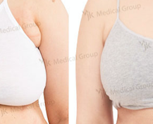 Axillary Breast Tissue Removal Before And After Photos