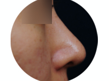 Before After Nose Surgery Pictures