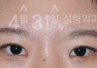 Double Eyelid Surgery Before And After Photos