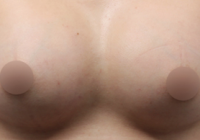Breast Augmentation Silicone Before And After Photos