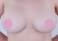 Mammoplasty Before And After