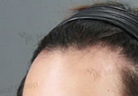 Hairline Lowering Before And After Pictures