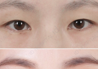 Double Eyelid Full Incision Before And After Photos