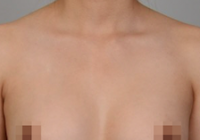 Augmentation Mammoplasty Before And After Photos