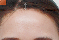 Hairline Forehead Reduction Before And After Photos