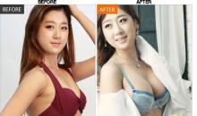 Korean Plastic Surgery: Breast reconstruction